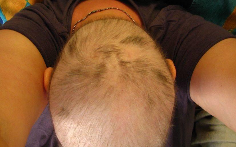 30 máscaras de cebolla para los cabellos